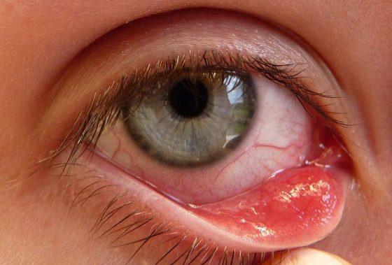 Chalazion, ochorenie oka