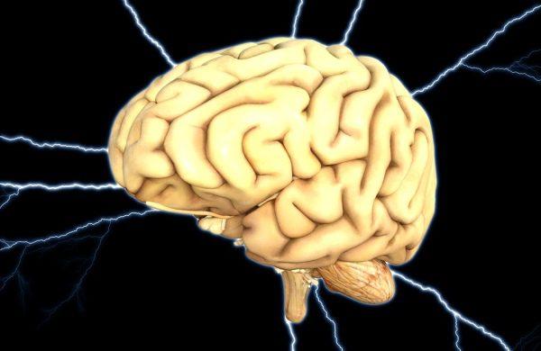 Mozog a ako vzniká mŕtvica