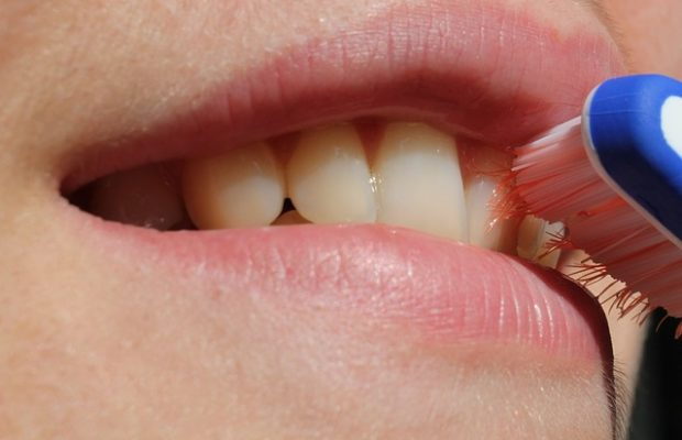 zubný kameň